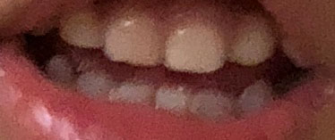 歯 変色 おさまった