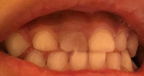歯 変色 ピーク