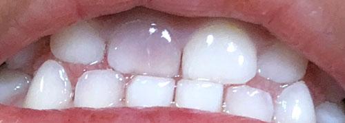 歯 変色 薄ピンク